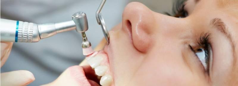 carie-e-pulizia-dei-denti-3